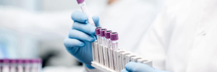 Diagnóstico Hepatite B - Hepic